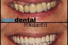 Mardental2
